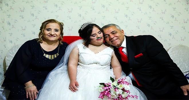 Down sendromlu Hazal yeni yaşına düğünle girdi